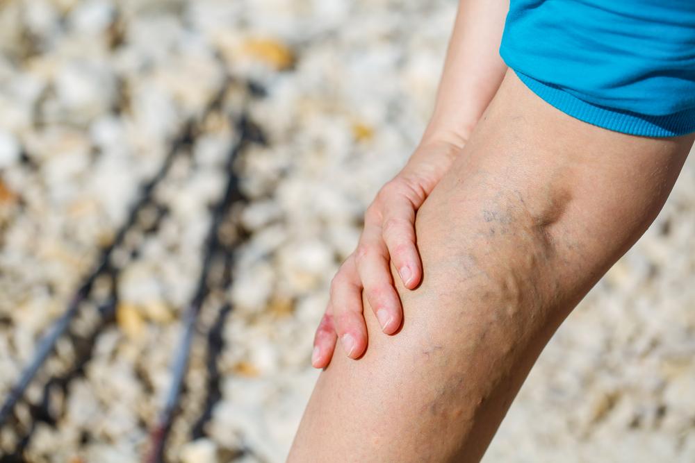 hogyan lehet elrejteni a visszéreket a lábán