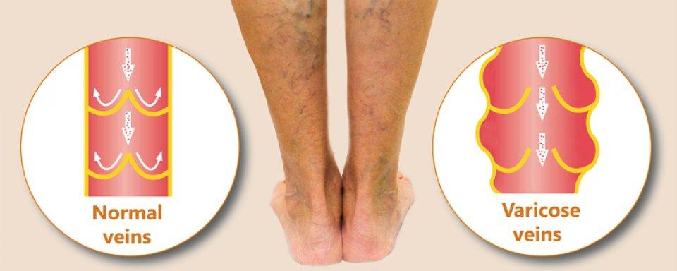 a láb nagyon rosszul fáj a visszér miatt