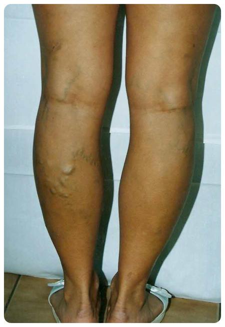 Visszér a műtét utáni első napokban. Torokmandula műtét (Tonsillectomia)