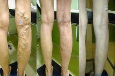 varikózus varikózis kezelése visszér méz szolgáltatások