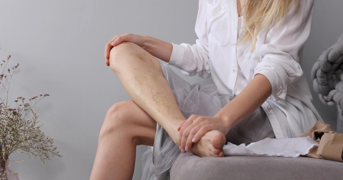 visszér lézeres kezelés előtt és után tömöríti a lábak varikózisát