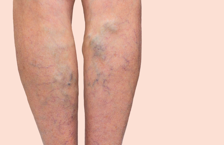 otthoni kezelés a visszerek a lábakon