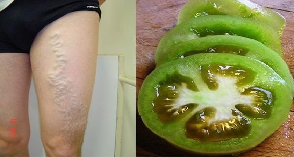 gyógymódok a varikózis kezelésére a lábakon