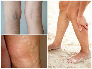 visszér visszahatása só krémek a visszér ellen a lábakon