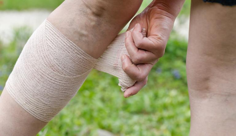 kompressziós harisnya az alsó végtagok varikózisához síró sebek a lábakon visszérrel