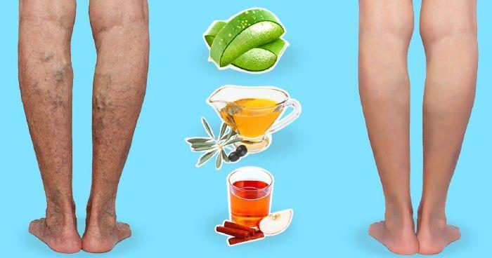 a lábakon lévő visszéreket népi gyógymódokkal kezeljük visszérrel, lábak felfelé