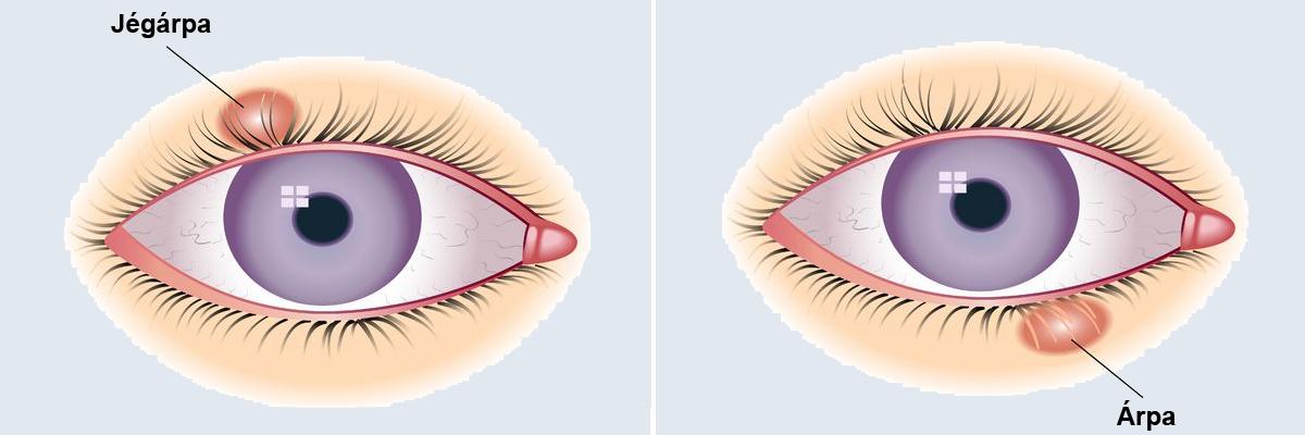 hogyan lehet eltávolítani a visszerek a szem