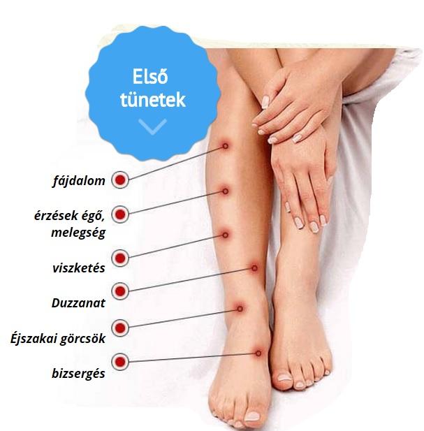 a láb fáj a visszérektől népi gyógymódokkal)
