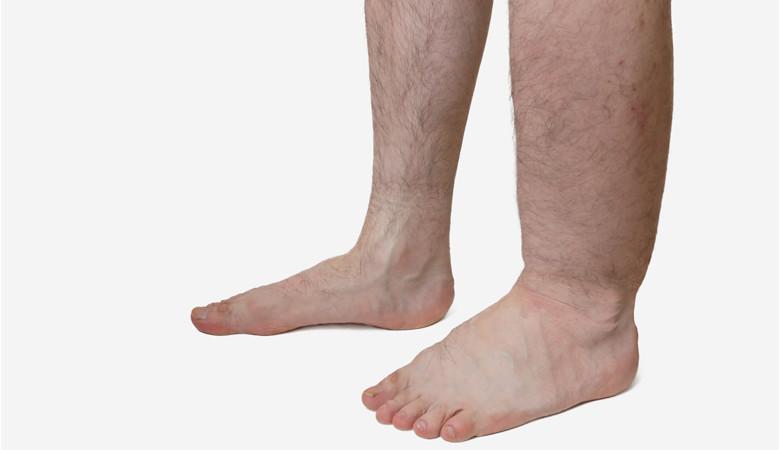 a láb bőrének megvastagodása visszeres