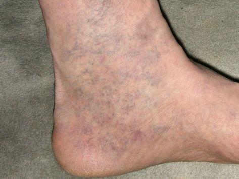 a visszér illóolajainak receptje a lábak nehézsége nem a visszér oka