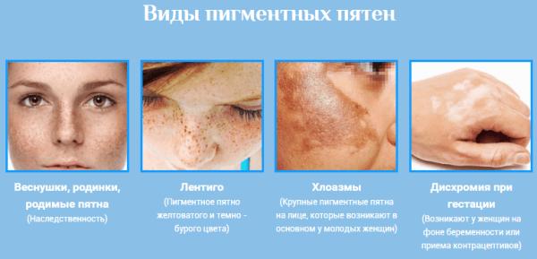 hogyan lehet megszabadulni az orr visszérétől