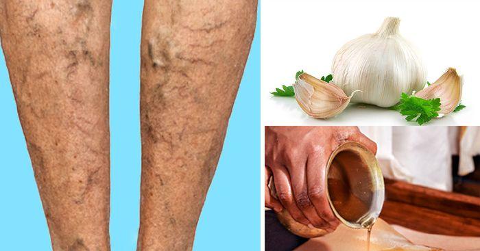 visszér phlebectomia mi ez hogyan lehet megbirkózni a visszerek a lábakon