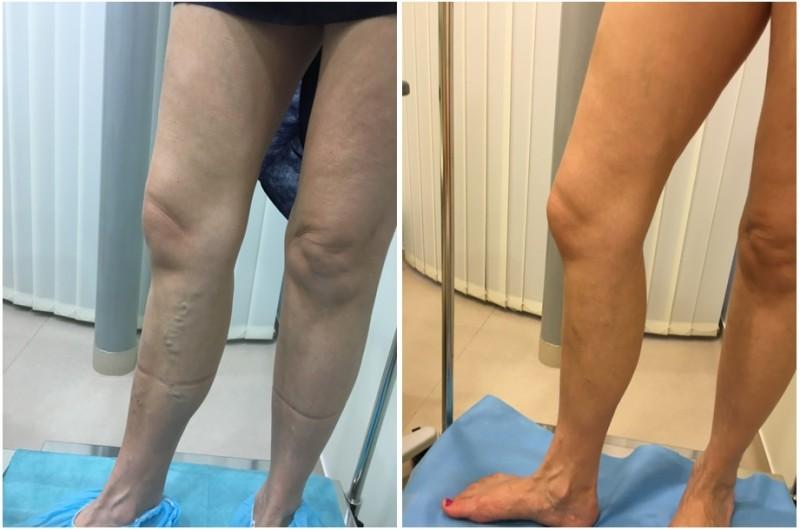 visszér a lábfájdalom tünetei