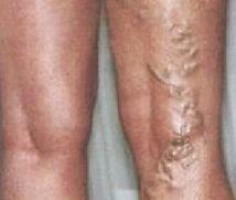 szerotonin visszér Kaluga visszér kezelés