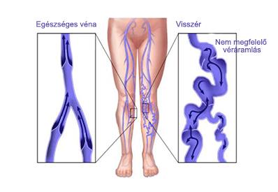 visszér és a gerinc hogyan lehet elrejteni a visszéreket a lábán