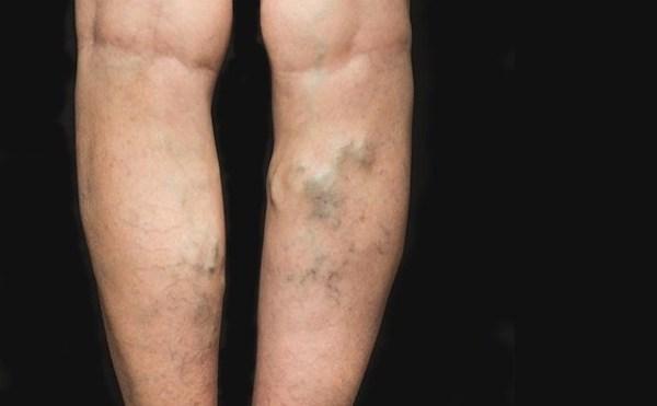 visszér egy férfiban tünetek vélemények a visszér hidrogén-peroxiddal történő kezeléséről