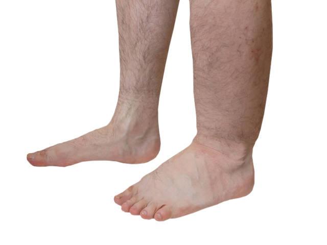 a lábak hiperpigmentációja visszeres visszér, hogyan lehet egy lábat rugalmas pólyával bekötni