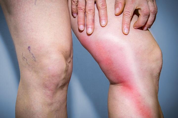 visszérgyulladás éles fájdalom a lábon a visszér a lábakon ereket robbant
