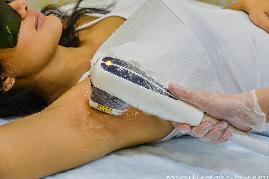 hatékony gyógymód a visszér ellen műtét nélkül