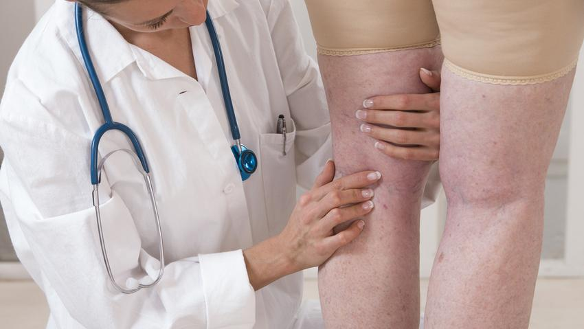 a lábak visszérgyulladása tüneteket okoz
