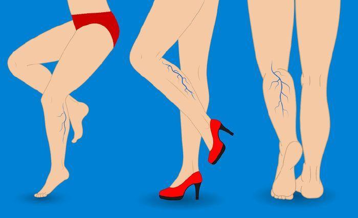 piócák a varikózis miatt a lábakon ehető gesztenye és visszér