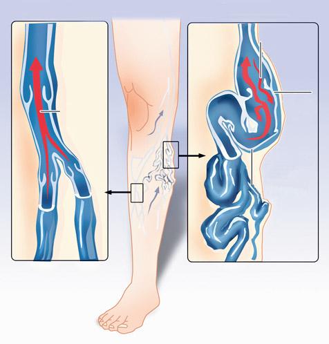 kenőcsök a kezdeti visszér ellen a hirudoterápia áttekinti a visszér kezelését