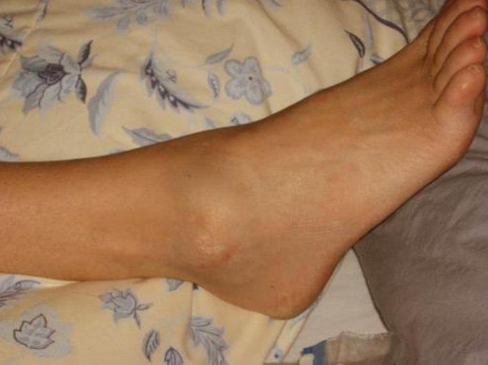 Távolítsa el a duzzanatot a varikózisos lábakról