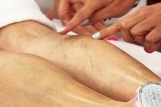 visszér a nőknél tünetek és kezelés