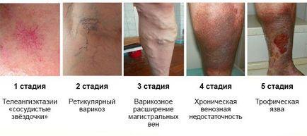 cfs visszér kezelés)