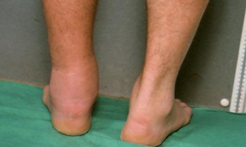 visszér súlyos láb ödéma