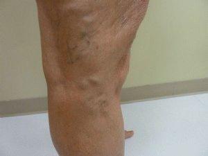 a visszérektől az alsó lábig ciszta és a kis medence visszér