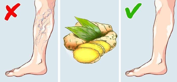 felfedezés a visszér kezelésében népi módszer a láb visszér kezelésére