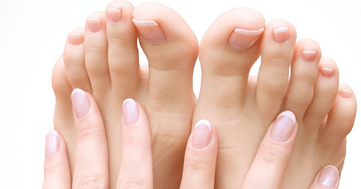 a lábak leválnak a visszérről az alsó végtagok varikózisának megelőzése és kezelése