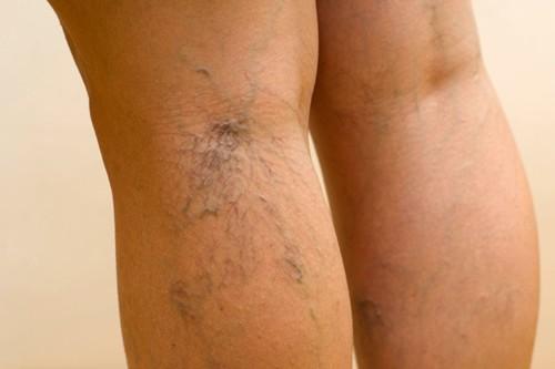 mindez a visszerek a lábakon kötszerek a visszér visszéréből