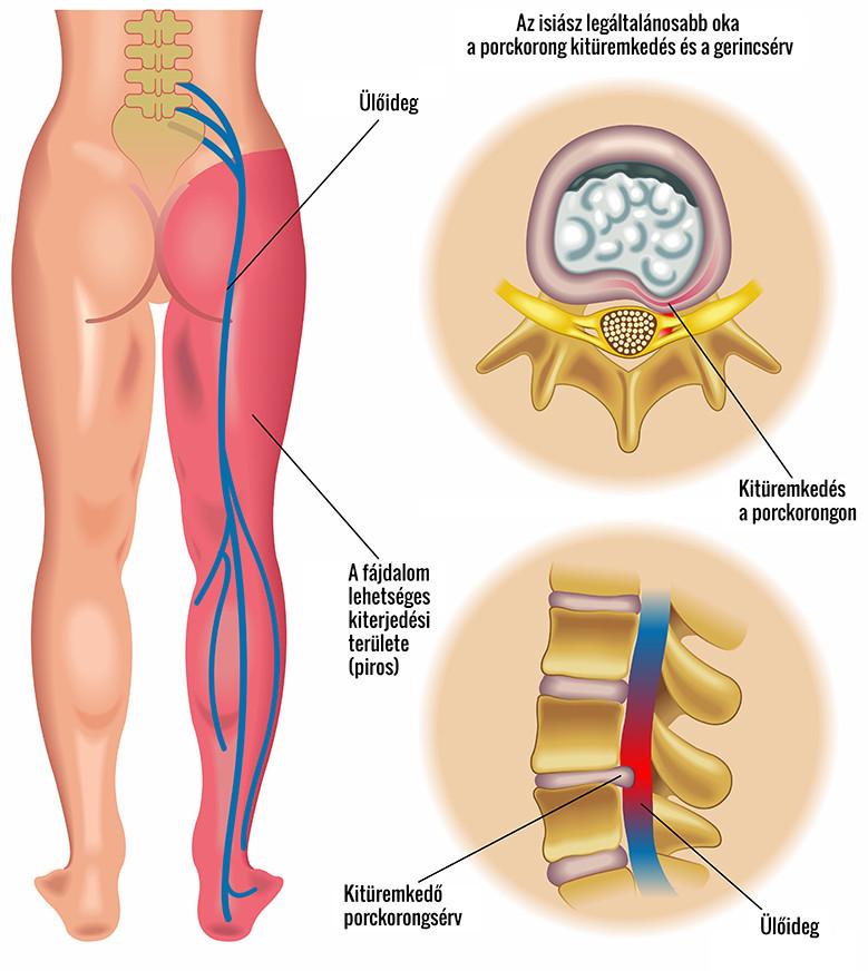 fájdalomcsillapító a varikózis miatt a lábaknál)