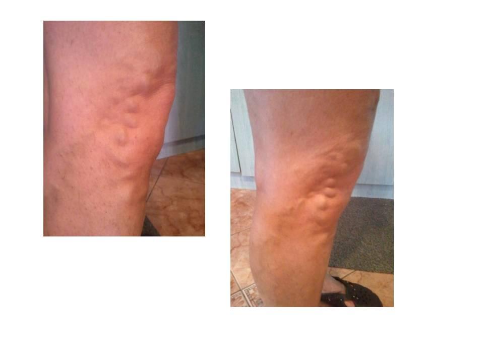 dudorok a lábakon a visszér miatt a lábak bőrének viszketése visszeres kezeléssel