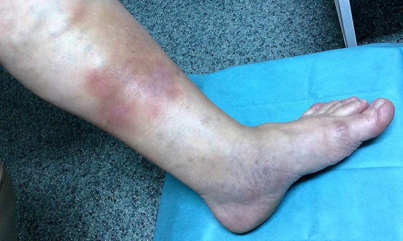 a láb visszeres fekélyeinek kezelése a visszér varrási fájdalma