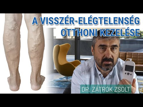 a csizma ára - a visszér kezelésére annál jobb a lábak visszér kezelésére