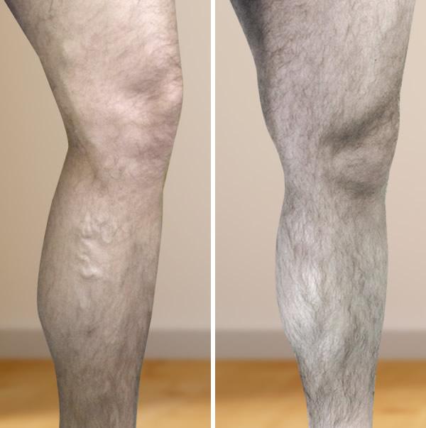 visszér és szimulátorok képesek vérömleny a lábakon, visszér fotó