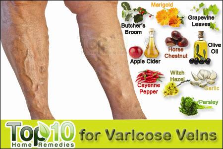 tinktúra visszér és thrombophlebitis esetén a leghatékonyabb krém a láb visszérin