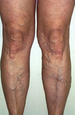 tabletták thrombophlebitis és visszér ellen hogyan kell kezelni a varikózisos lábat a szülés után