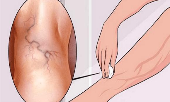 hogyan kell bekenni a lábad visszeres terhességgel