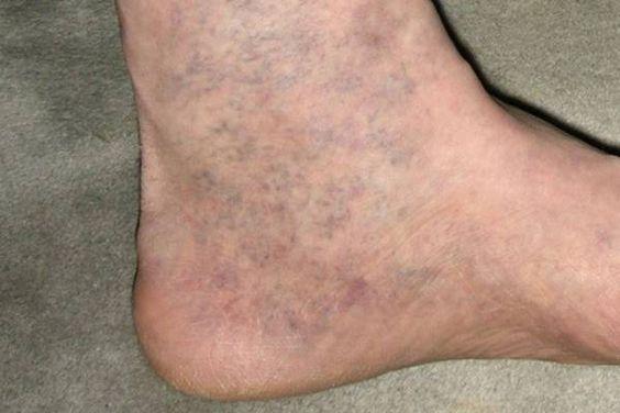 A lábak megduzzadnak-e a visszérben. Gyakori megbetegedések