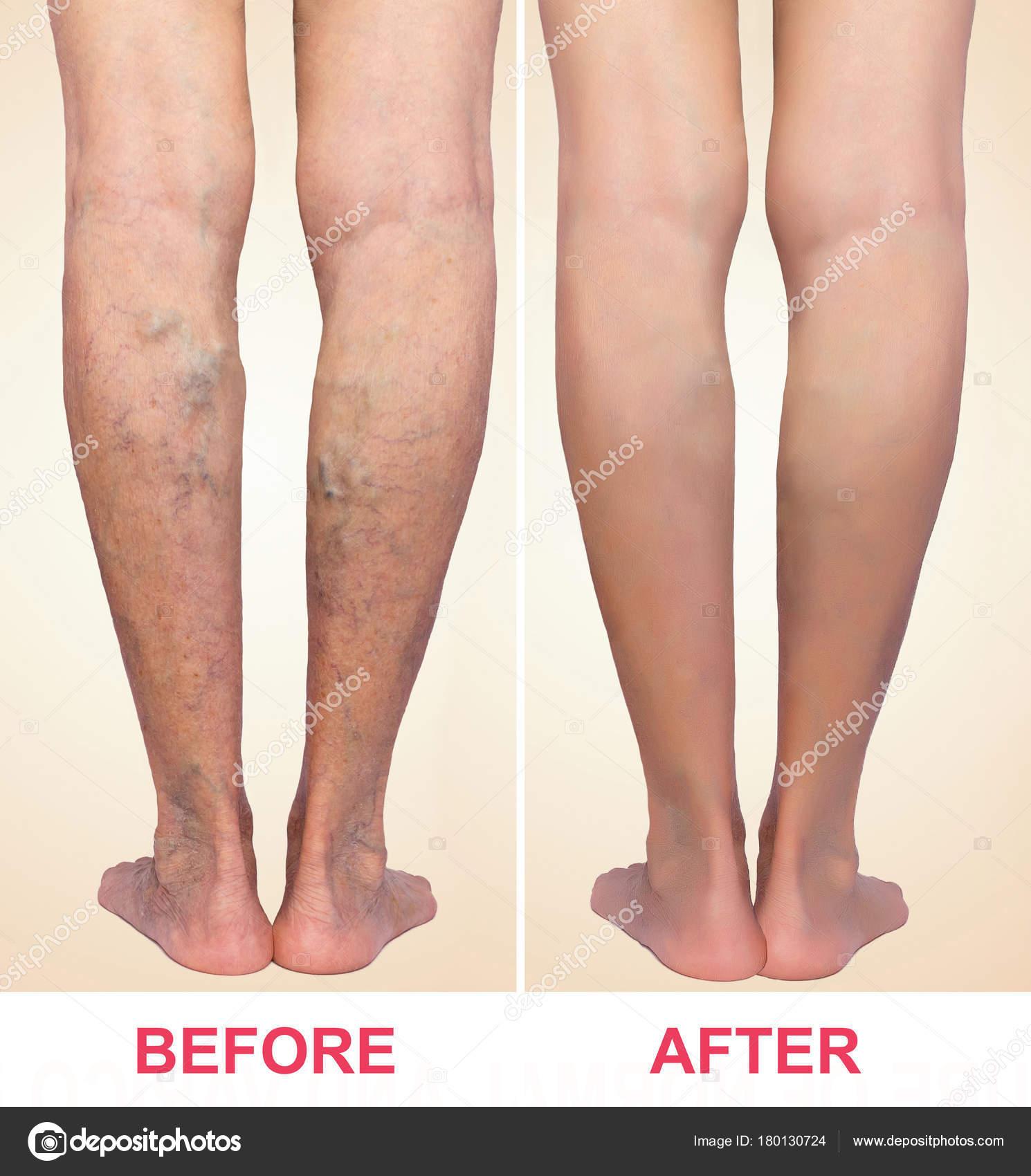 gyógyítható-e piócákkal a visszér visszér eltávolítása a lábakon rehabilitáció