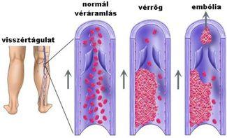varikózus varikózis kezelése harisnyanadrág visszerek kezelésére terhesség alatt