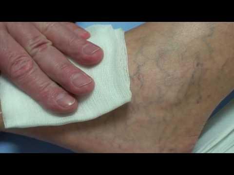 Mikor kell sebészhez kell fordulni - Visszér kezelés