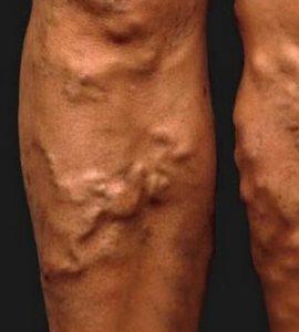 a visszér eltávolításának szövődményei kompressziós térd zokni visszér férfiak számára