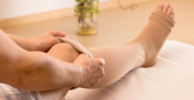 terpentin visszeres lábak esetén