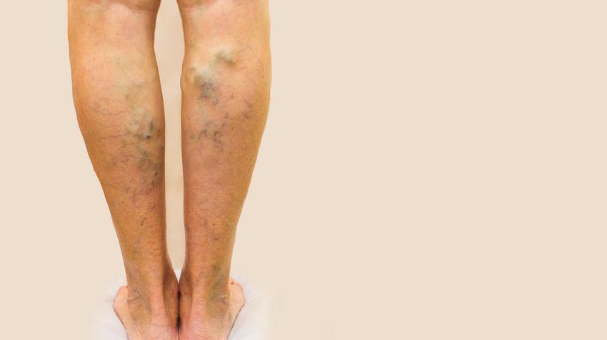 Piócák beállításának sémája a lábak varikózisában