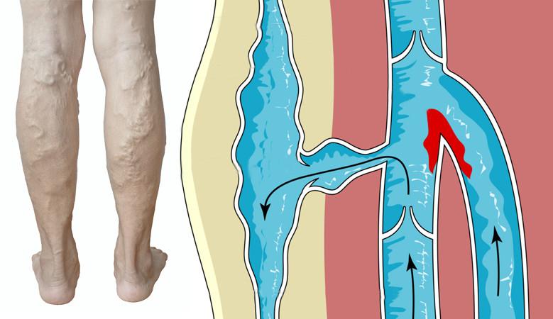 a láb megdagad a visszérben visszerek viselői nadrágok terhes nők számára